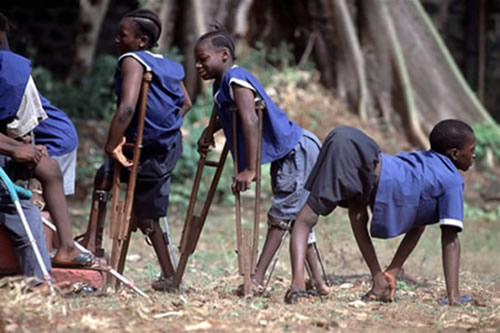 La polio en Nigeria ha aumentado como consecuencia de las campañas de vacunación experimentales