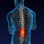 La lumbalgia por Diana Valeria, la columna, las vertebras, el ten inferior, el sistema de amortiguación